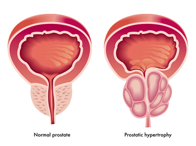12 things you need to know about prostate Cancer