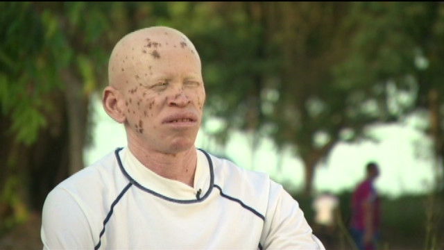 'Albinos still live in fear'
